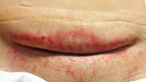 wound march 3